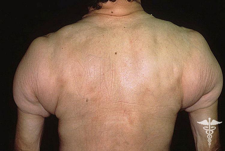 Пансклеротическая инвалидизирующая склеродермия