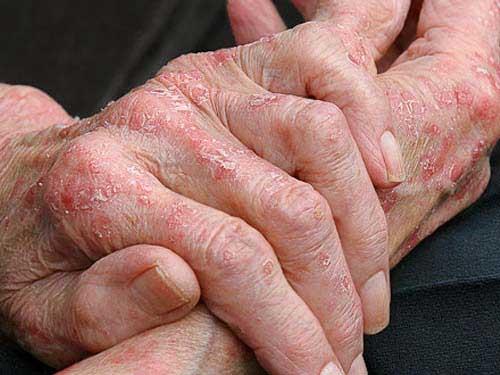 атопический дерматит диагностика