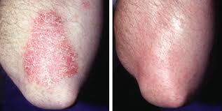 лечение псориаза 1