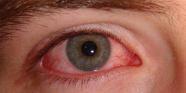 опоясывающий герпес ретинит