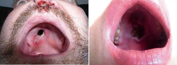 проявления сифилиса-гуммозный сифилид