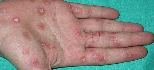 проявления вторичного сифилиса 2