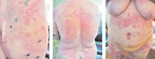 герпетиформный дерматит (болезнь Дюринга)