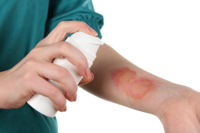 атопический дерматит лечение