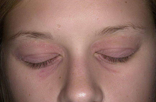 атопический дерматит симптомы 2