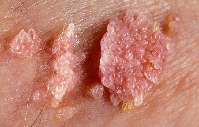 остроконечные кондиломы симптомы 1