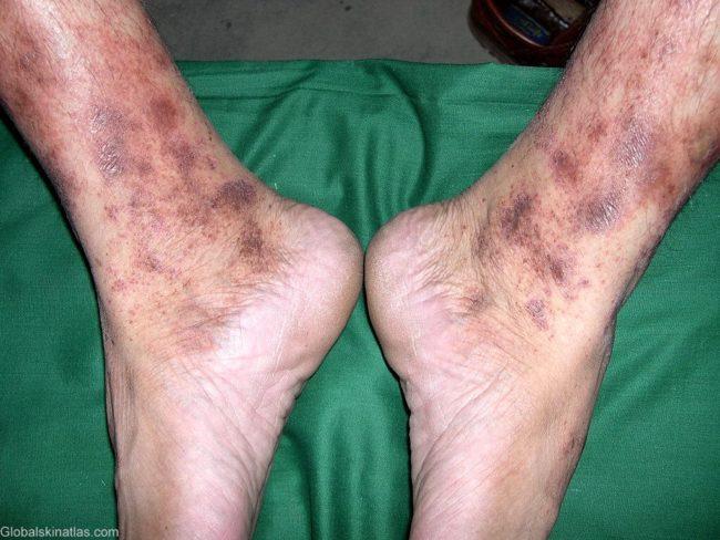 васкулит симптомы (ангиодермит Гужеро Блюма)