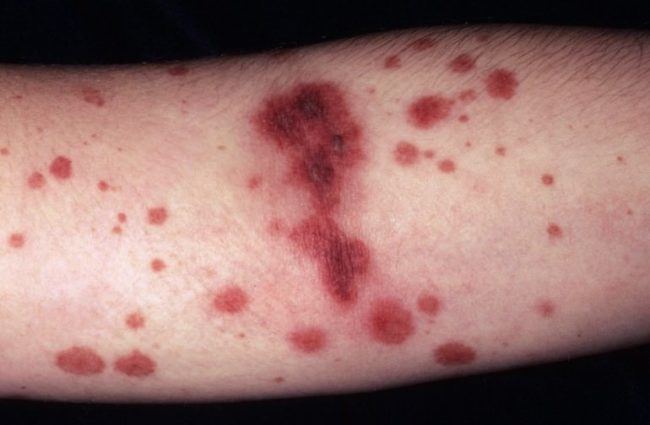 васкулит симптомы 2