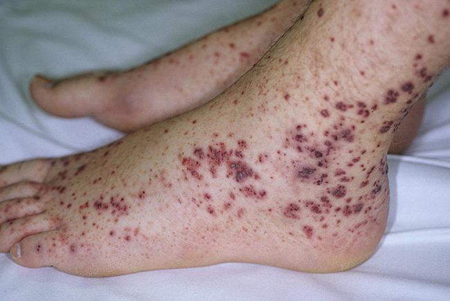васкулит симптомы 4
