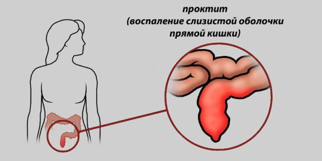 гонорея-симптомы-практит