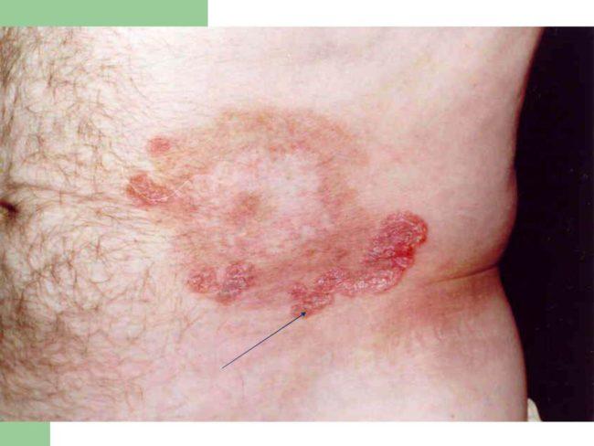 проявления сифилиса-бугорковый сифилид