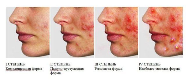 симптомы-угревой-болезни