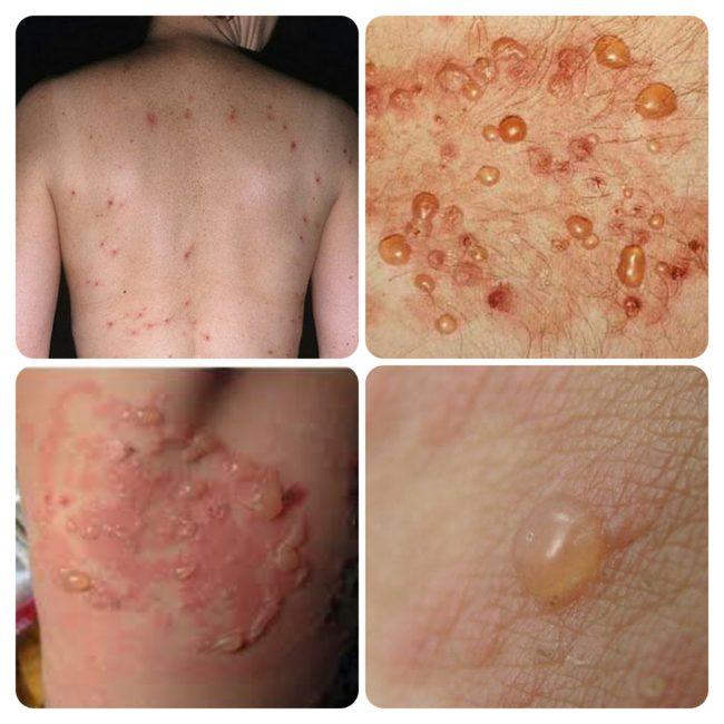 дерматит-дюринга-симптомы