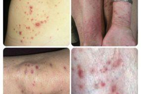 CD30+ лимфопролиферативные заболевания кожи