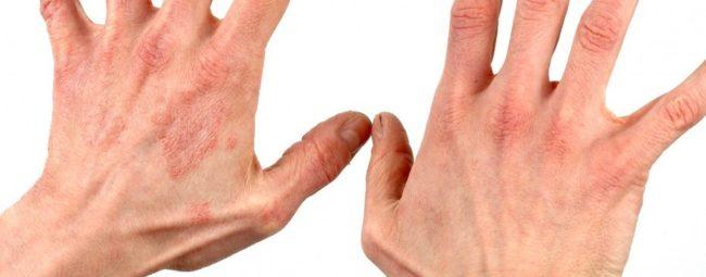 khronicheskiy- (kumulyativnyy) -kontaktnyy-dermatit