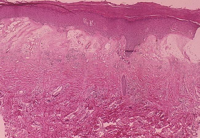 krasnyy-ploskiy-lishay-diagnostika