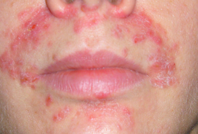 гранулематозная форма периорального дерматита