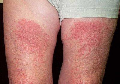 Луговой дерматит