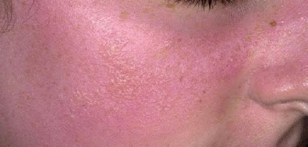 Фотоконтактный дерматит