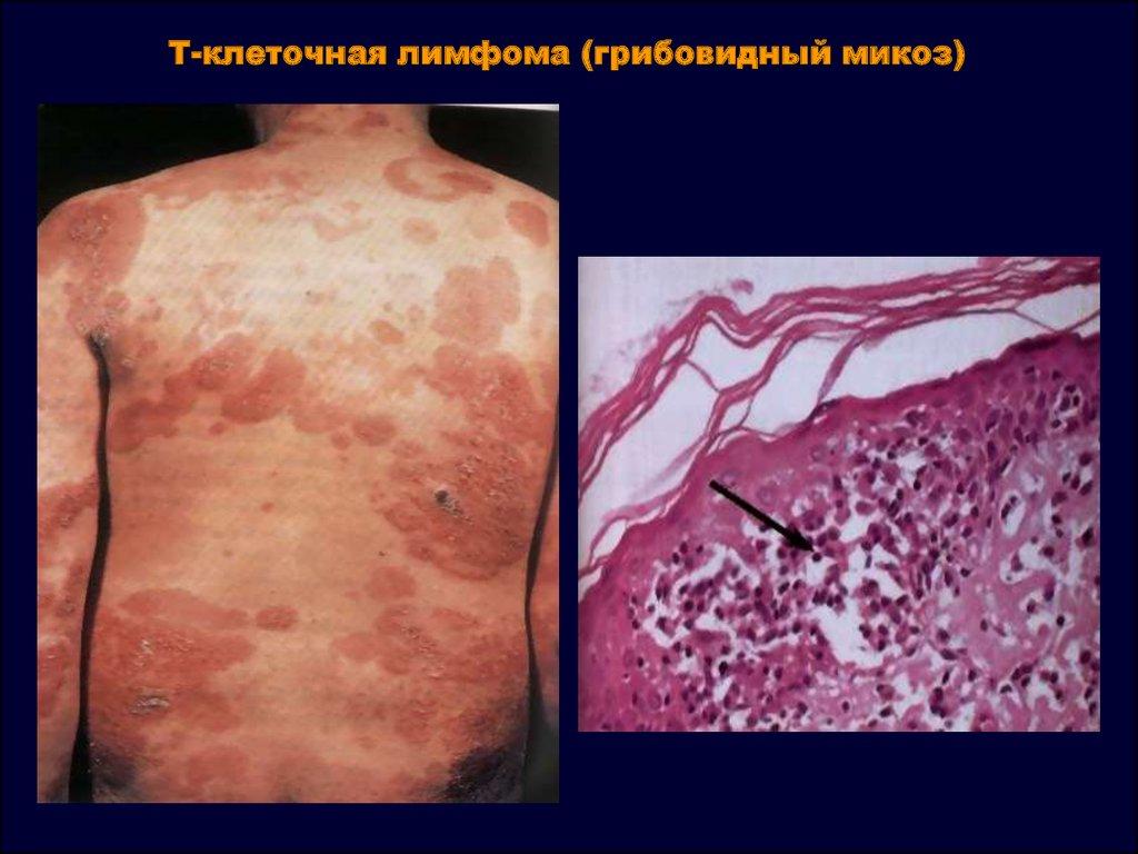 грибовидный микоз гистология