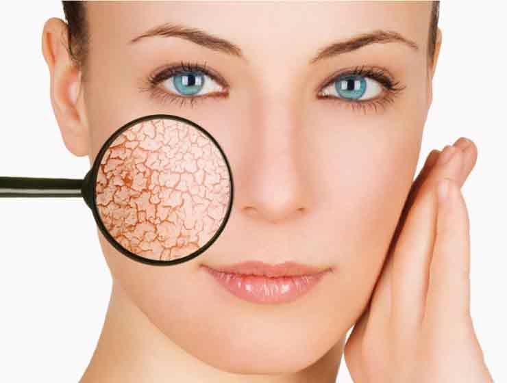 лимфома кожи
