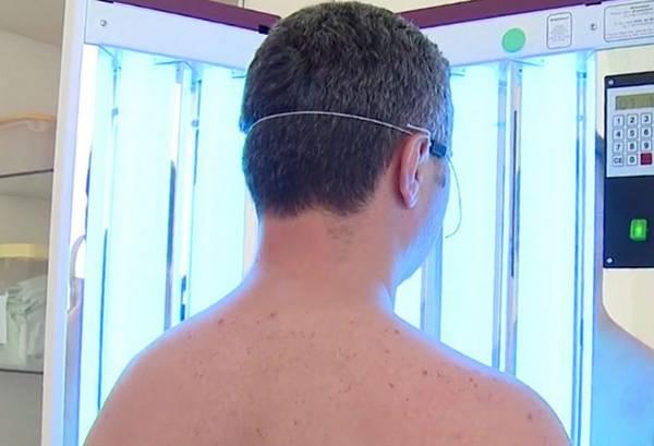 фотодерматоз лечение