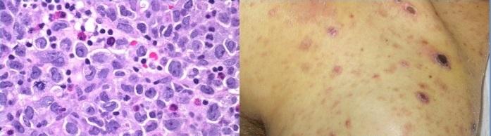 первичная кожная анапластическая CD30+крупноклеточная лимфома